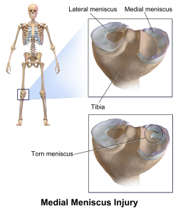 Medial_Meniscus_Injury