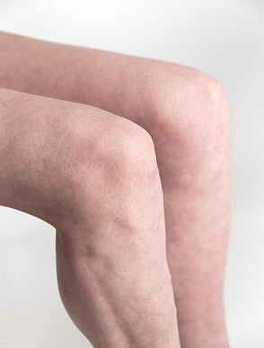 Runner's Knee – what is it and how is it treated?
