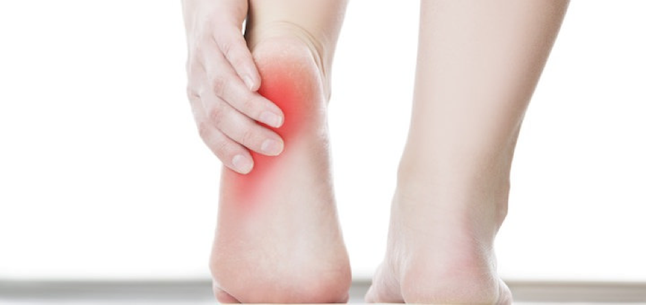 Plantar fasciopathy – why your legs might hurt in the summer